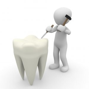 tooth-1015409_1920